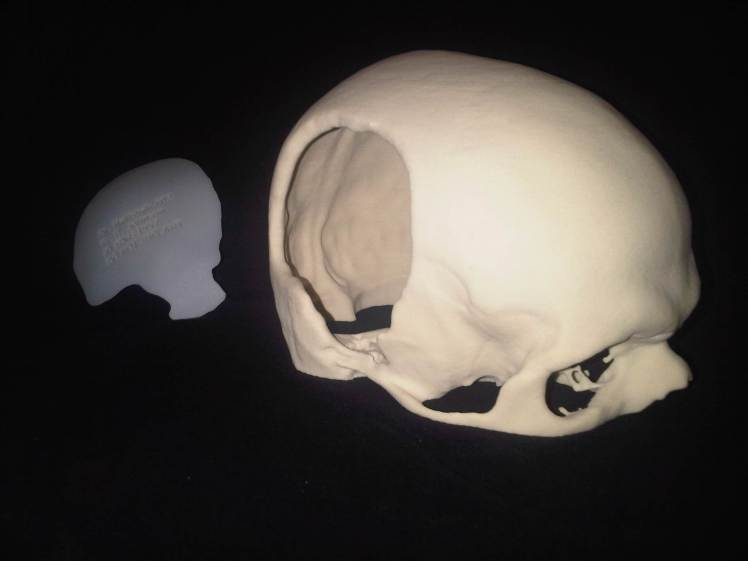 a photo of 100%replica of my skull and the hole i have in it.